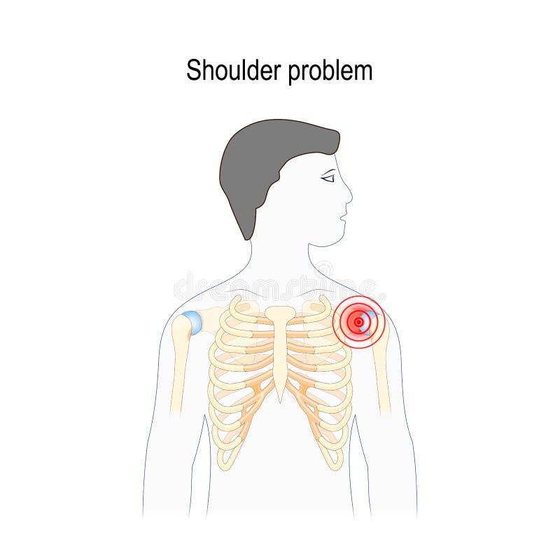 Проблема плеча иллюстрация вектора