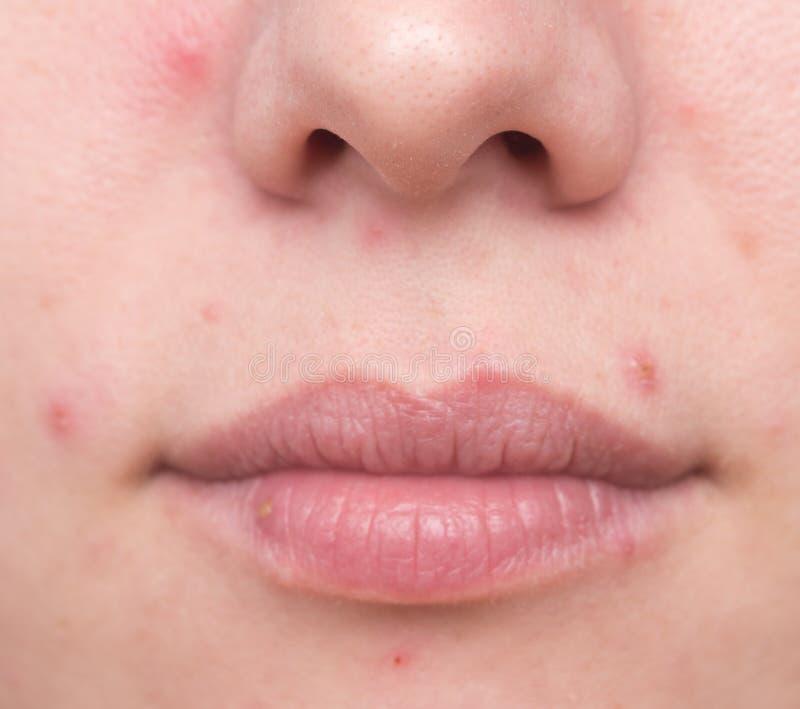 Проблемная кожа женщины стоковая фотография rf