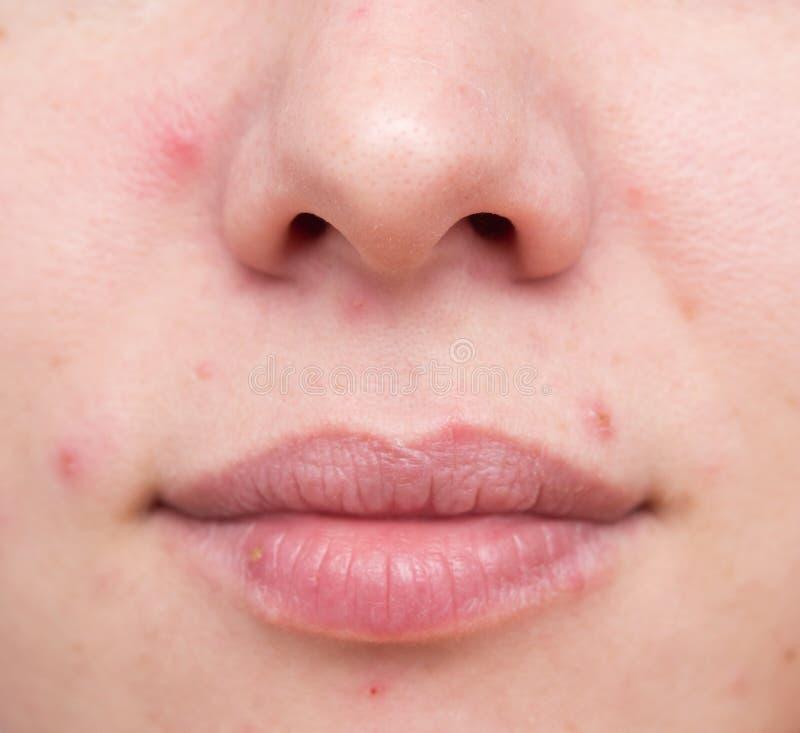 Проблемная кожа женщины стоковое изображение