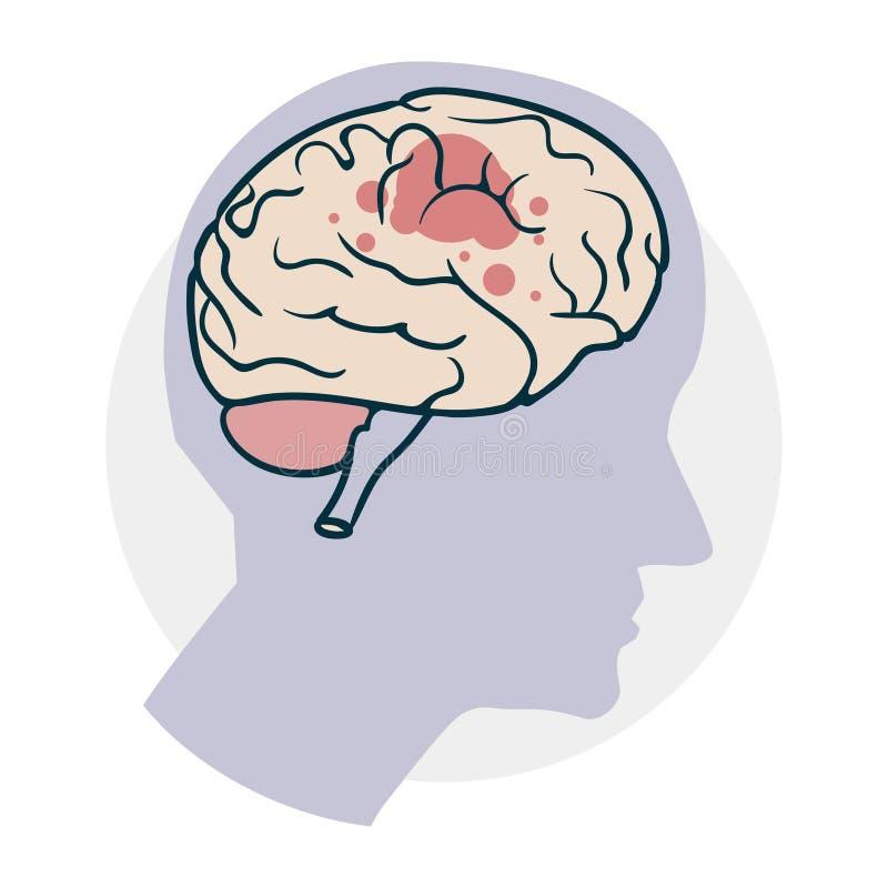 Проблемы с мозгом иллюстрация вектора