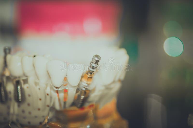 Прозрачная модель человеческих зубов с имплантирует стоковые изображения