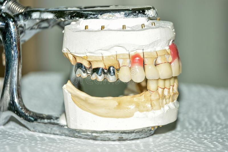 Производство зубоврачебных протезов, металл-керамические кроны на зубах гипса моделирует в обработке пациентов дантистов стоковые изображения