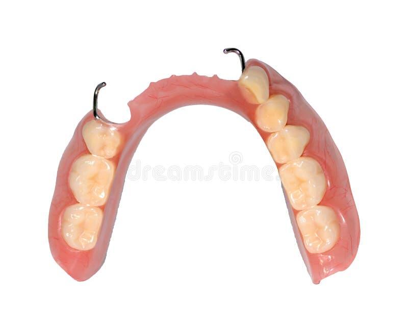 Производство зубоврачебных протезов, металл-керамические кроны на зубах гипса моделирует в обработке пациентов дантистов бесплатная иллюстрация