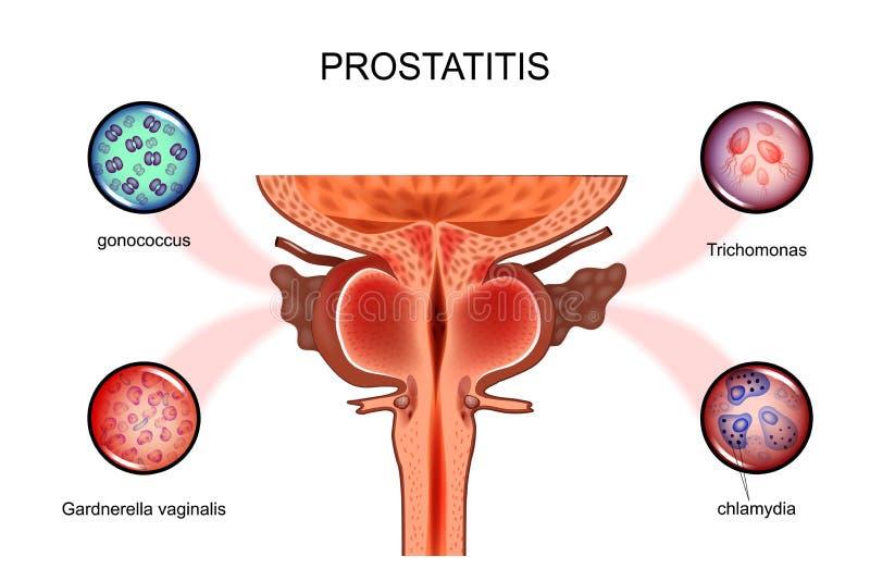 Простатит Сексуальные инфекции иллюстрация вектора
