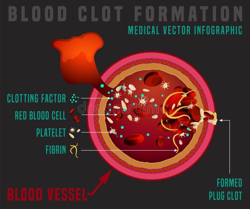 Процесс свертывания крови иллюстрация вектора