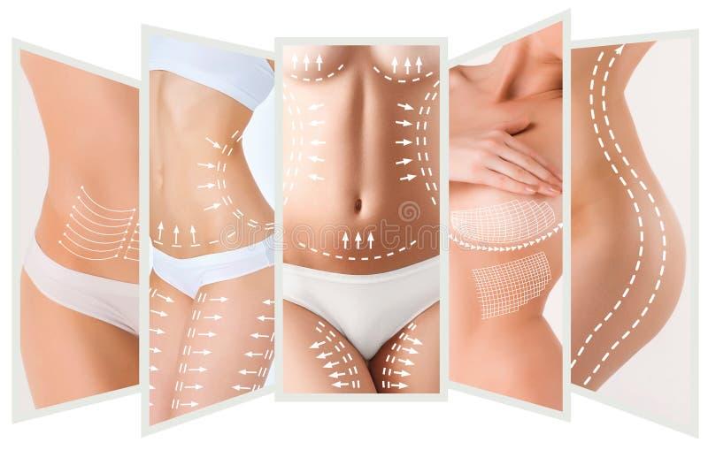 План удаления целлюлита Белые маркировки на теле молодой женщины стоковые фотографии rf