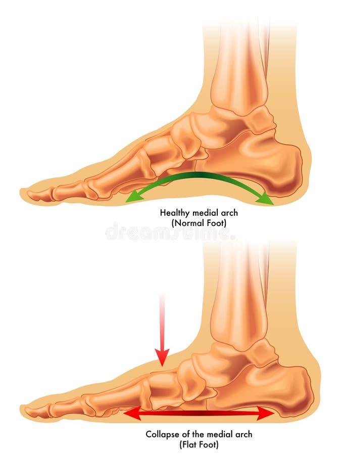 плоская нога бесплатная иллюстрация