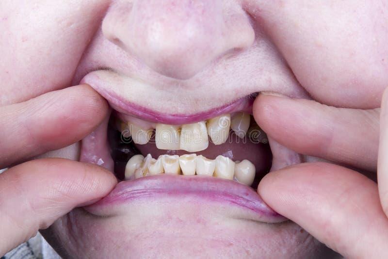 Плохие неполноценные зубы стоковые изображения rf
