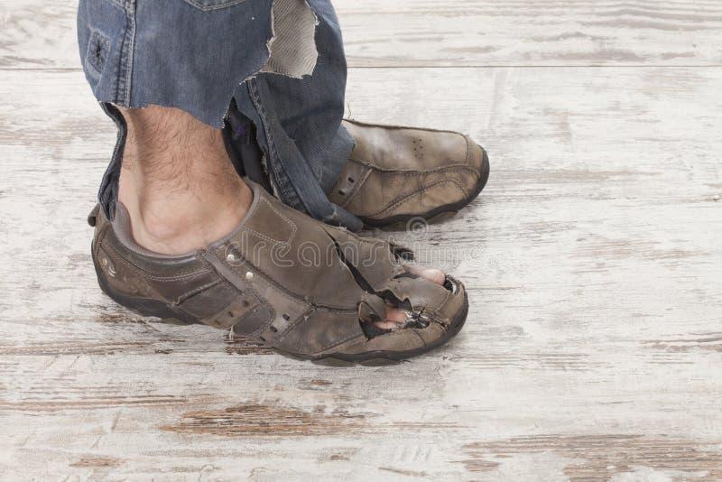 Плохие ноги стоковые фото