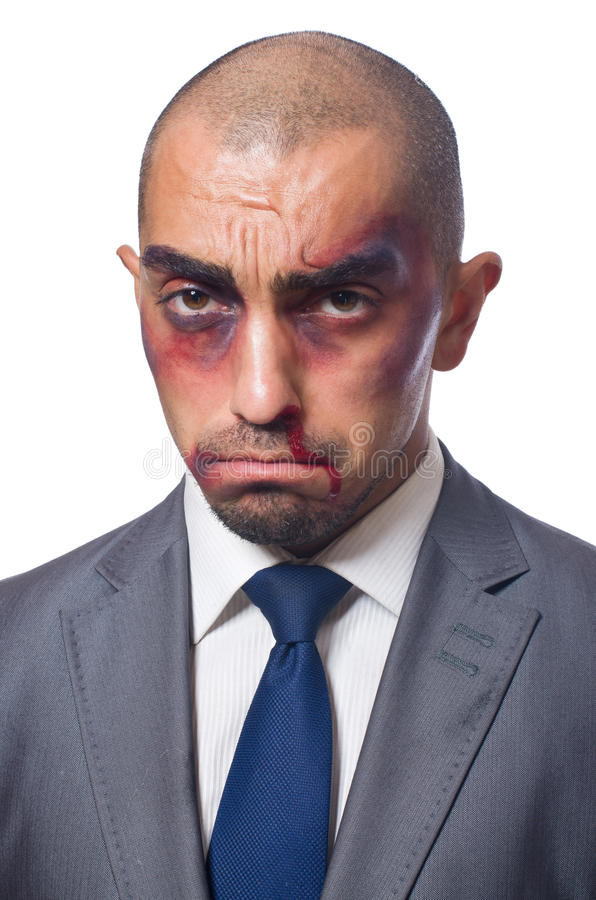 Плохо побитый бизнесмен стоковое изображение
