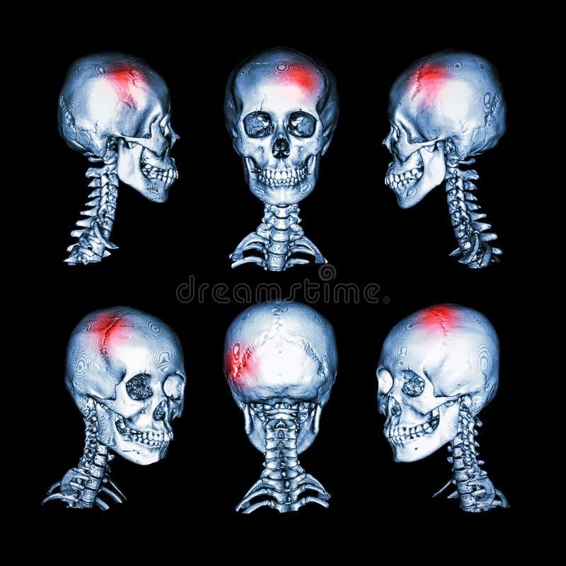 Развертка CT и изображение 3D головного и цервикального позвоночника Используйте это изображение для хода, трещиноватости черепа, иллюстрация вектора