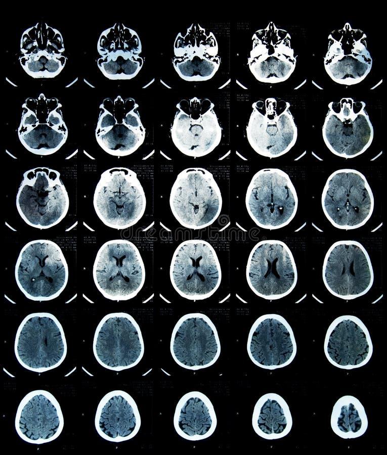 развертка ct мозга стоковые изображения rf