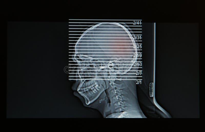 Развертка MRI головы человеческого повреждения головы выставки стоковая фотография rf