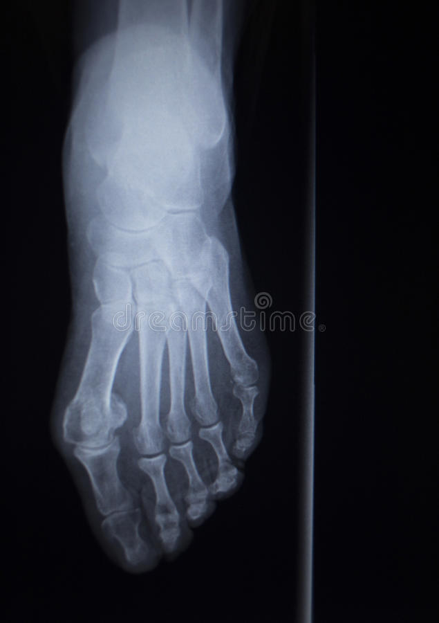 Развертка orthopedics рентгеновского снимка зада AP ушиба ноги anterior стоковые изображения rf