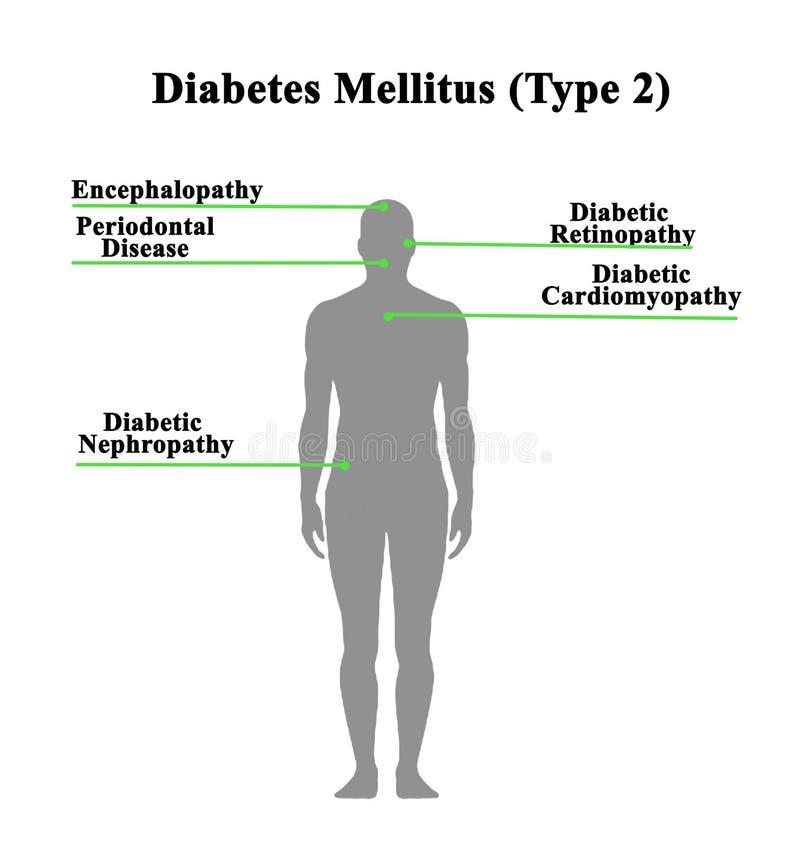 Разлады сахарных диабетов бесплатная иллюстрация