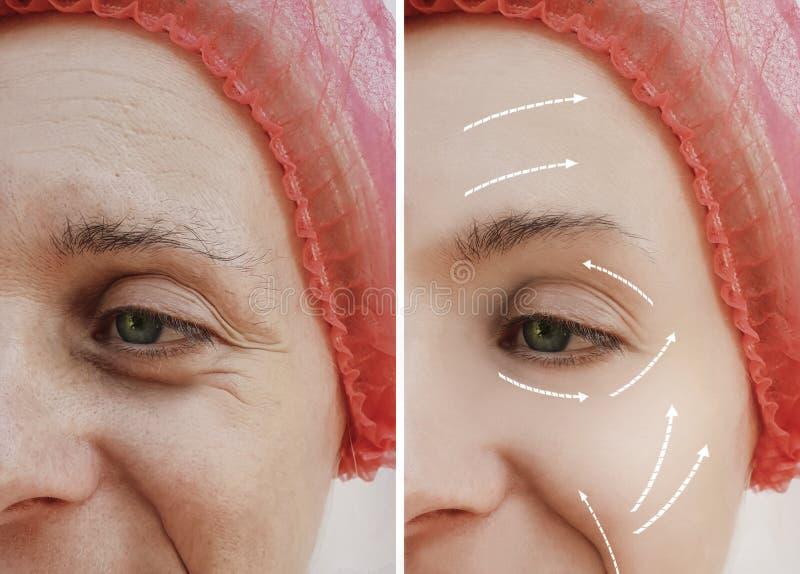 Разница в перед и после косметическими процедурами, стрелка женской взрослой лицевой обработки морщинок зрелая терпеливая стоковое изображение rf
