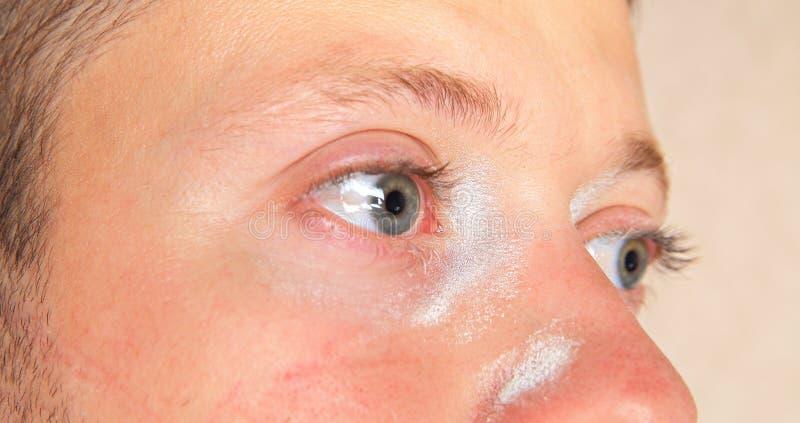 Раздражение кожи и глаз молодого человека стоковые изображения