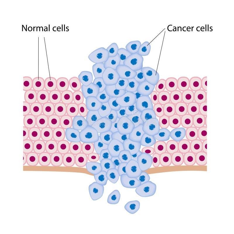 раковые клетки иллюстрация вектора