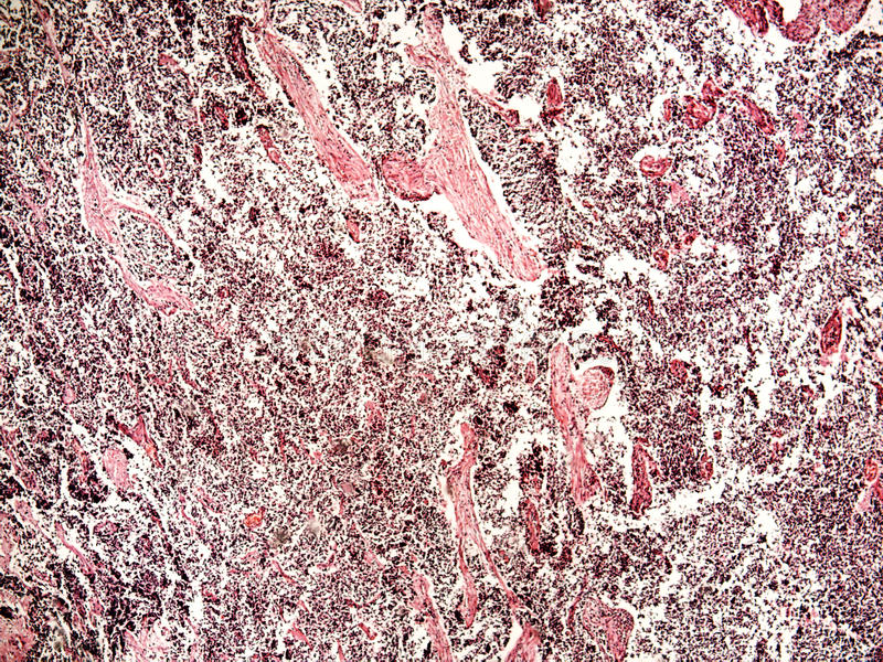 рак легких Мал-клетки человека стоковое фото