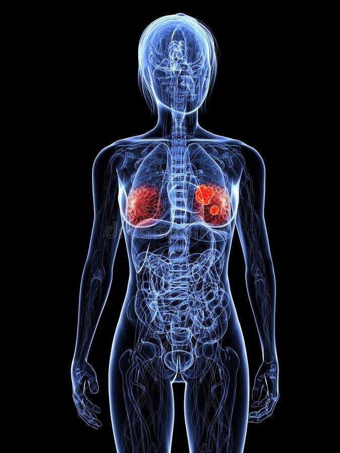 рак молочной железы бесплатная иллюстрация
