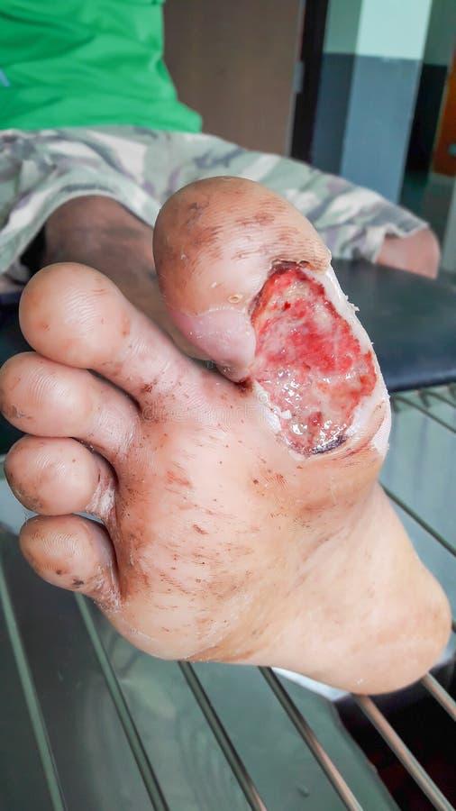 Рана диабетической ноги стоковые изображения