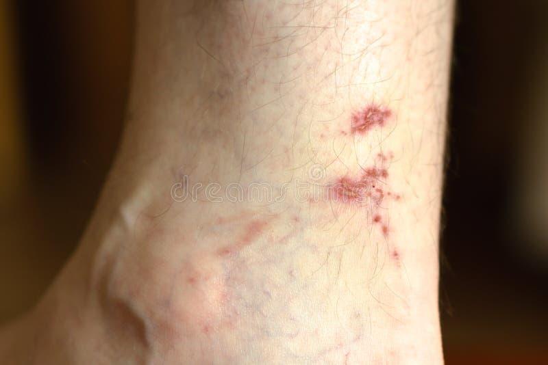 Рана лечения конца-вверх на ноге человека r стоковое изображение rf