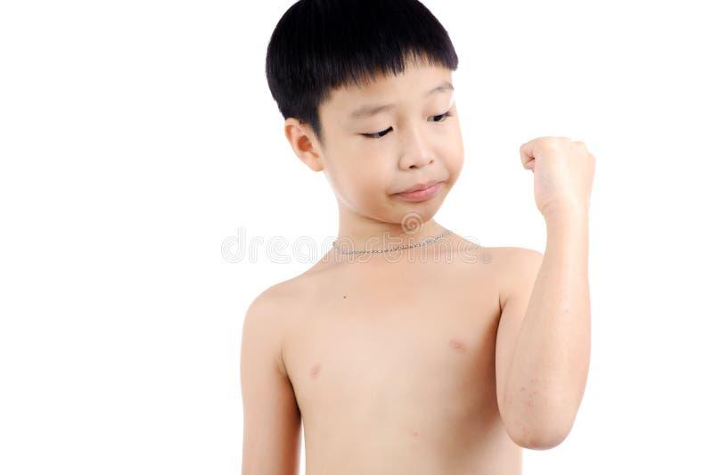 Рана мальчика стоковые фотографии rf