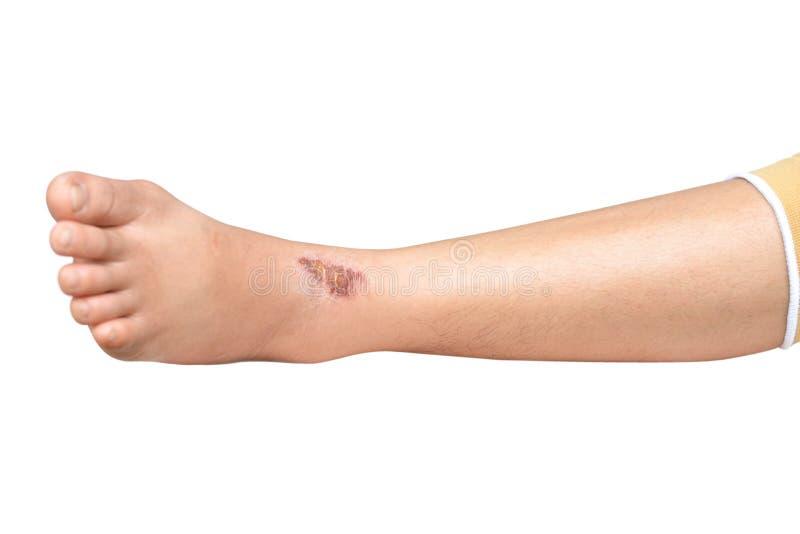 Раны в ногах на белизне стоковое изображение rf