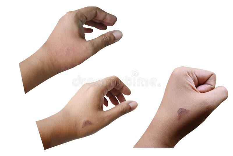 Раны в руках женщин Причиненный жарой утюга стоковое изображение