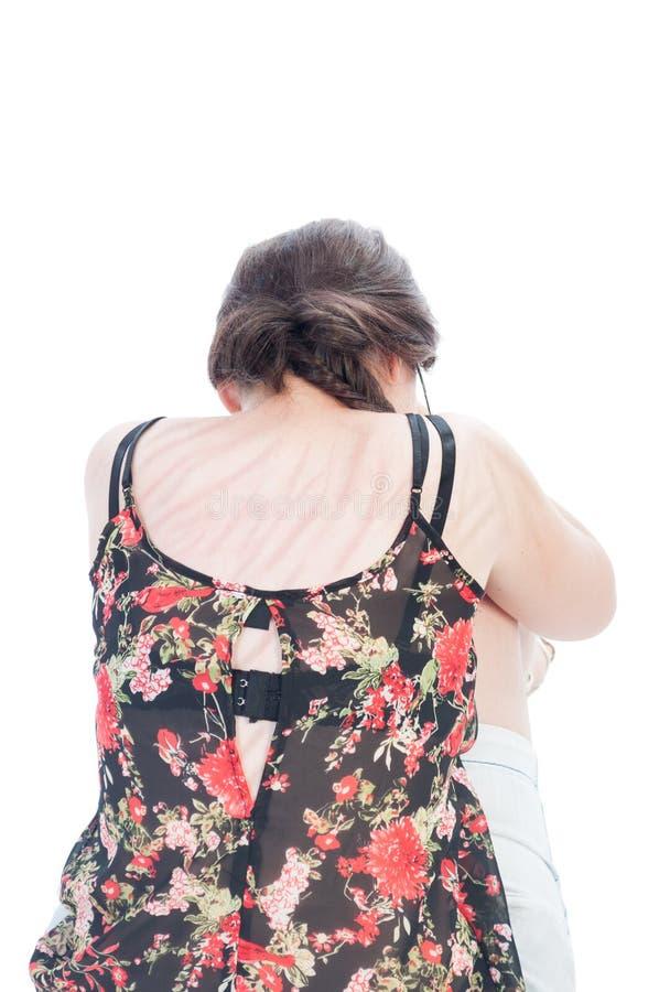 Раны на побитые девушки подпирают после beeing стоковое изображение