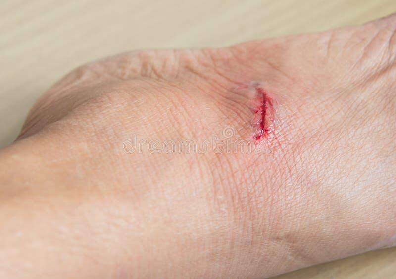 Раны от острых зубов, укусов собаки, крови стоковое фото