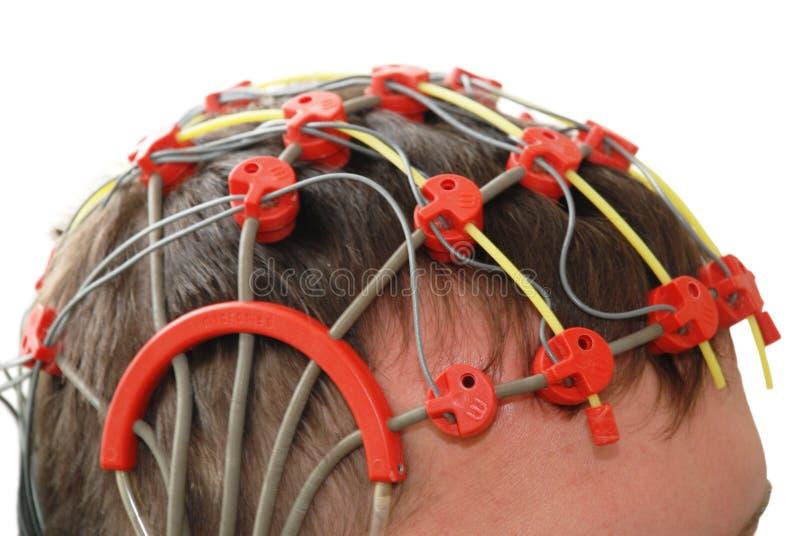 рассмотрение эпилепсии стоковое фото