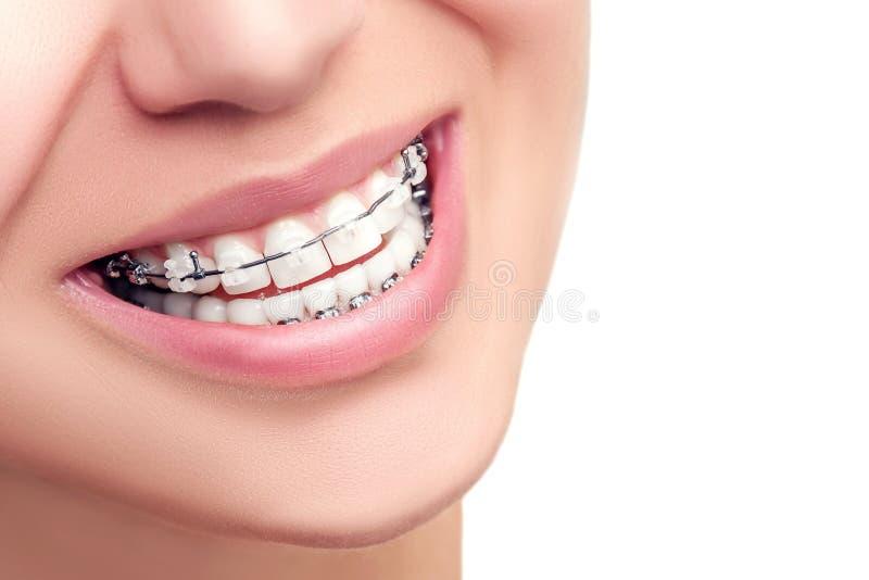 расчалкой Ортодонтическая концепция зубоврачебной заботы стоковое изображение rf