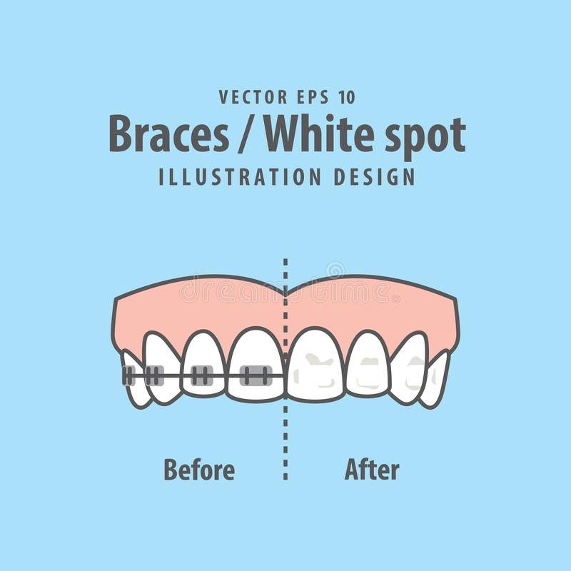 Расчалк-белый вектор иллюстрации пятна на голубой предпосылке зубоврачебно бесплатная иллюстрация