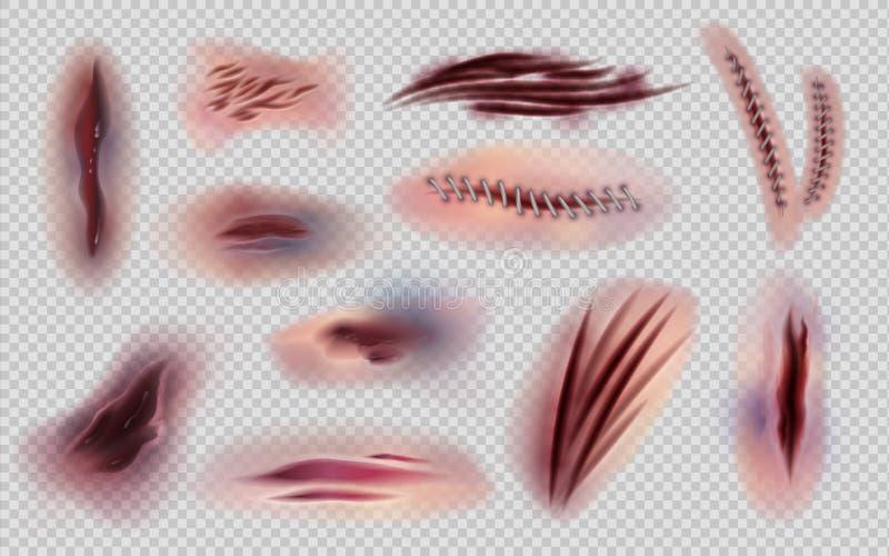 Реалистические раны и стежки Отрезанная кожа и изолированные метки и царапины, синяки и ушибы тела Шрамы тела вектора иллюстрация вектора
