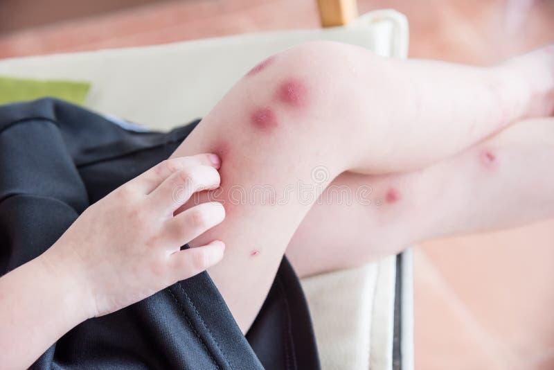 Ребенок царапая ногу с красным пятном от укуса насекомого стоковое изображение