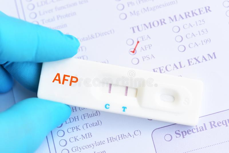 Результат теста AFP положительный стоковые изображения rf
