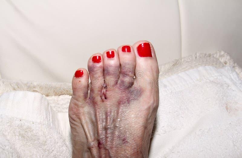 Результат хирургии невромы Morton на ноге женщины стоковое фото rf