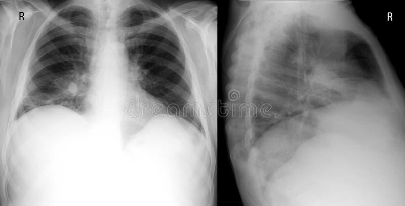 Рентгенизируйте легкего переднее и правое боковое proection показывающ большой проинфильтрируйте в среднем лепестке правого легке стоковые фотографии rf