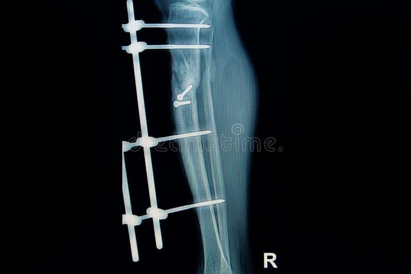 Рентгенизируйте изображение ноги трещиноватости (берца) с implant стоковое фото