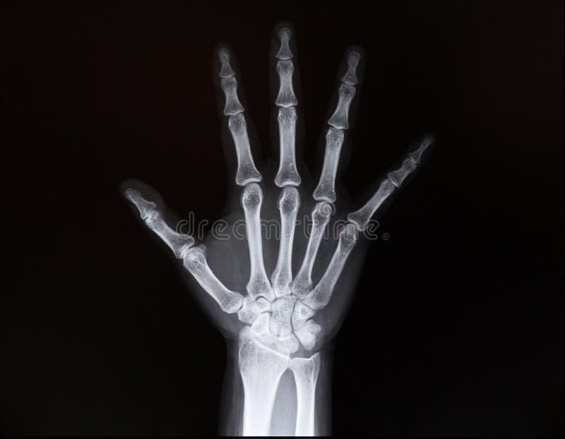 Рентгеновский снимок запястья руки оружий стоковые изображения rf