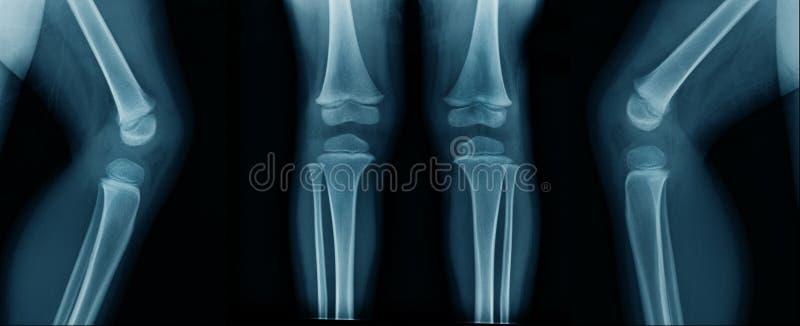 Рентгеновский снимок колена в голубом тоне стоковые изображения rf