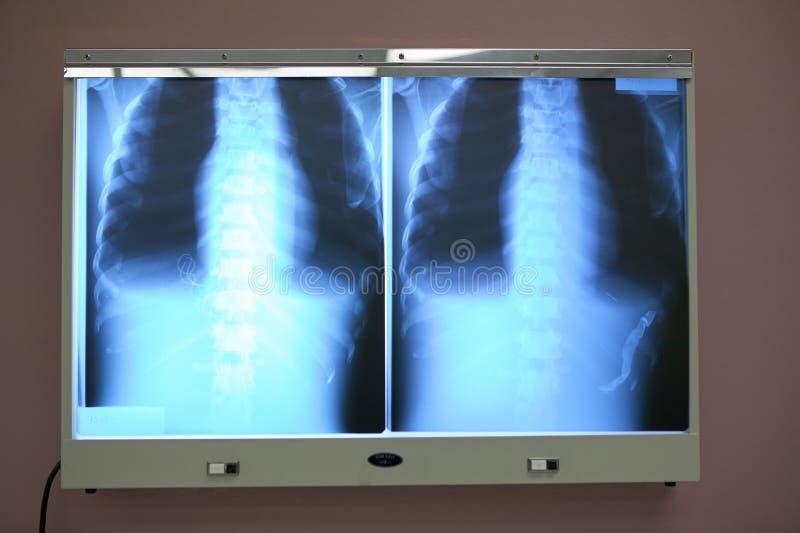 Рентгеновский снимок комода и торакса на коробке просмотра светлой стоковые изображения
