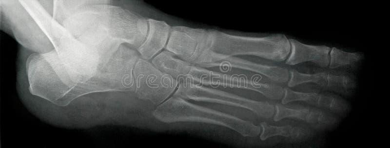 Рентгеновский снимок ноги, боковой взгляд стоковое изображение rf