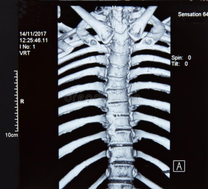 Рентгеновский снимок позвоночника MRI стоковые фото