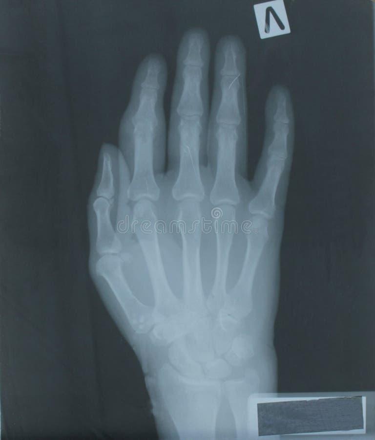 Рентгеновский снимок руки пациента стоковая фотография rf