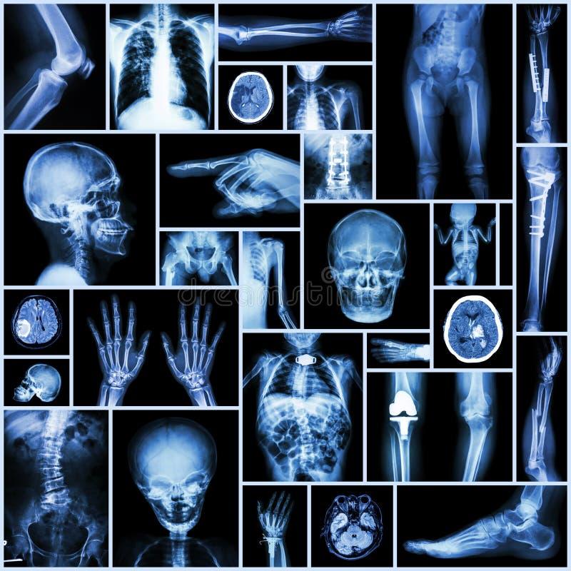 Рентгеновский снимок собрания стоковая фотография