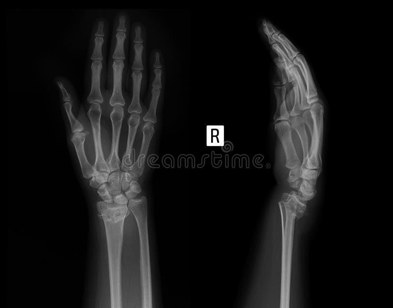 Рентгеновский снимок соединения запястья Трещиноватость радиуса стоковые фото