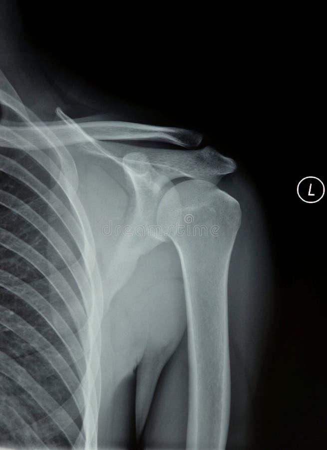 Рентгеновский снимок соединения плеча стоковые фотографии rf