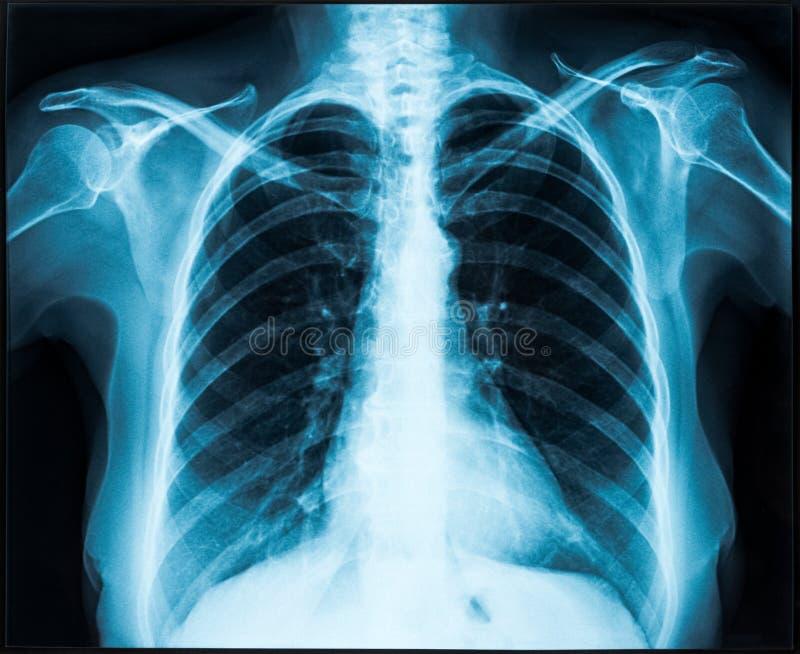 Рентгеновский снимок торакса стоковые фото